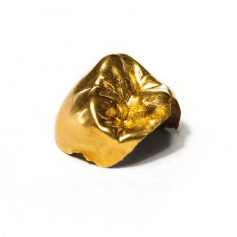 Zahngold Goldzahn Geld Ausgabe Inlay Kosten Versicherung zahn Zu